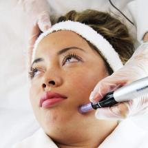 Dermapenbehandeling bij henny's beautystudio waalwijk